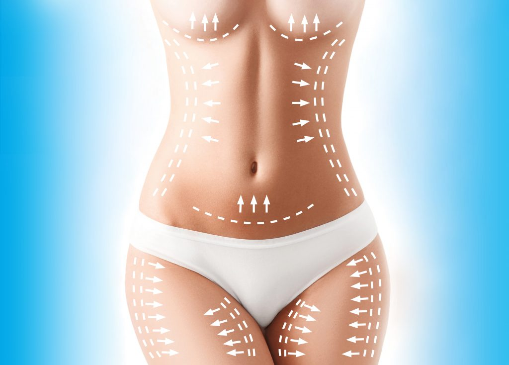 Which Is Best – SmartLipo or CoolSculpting?