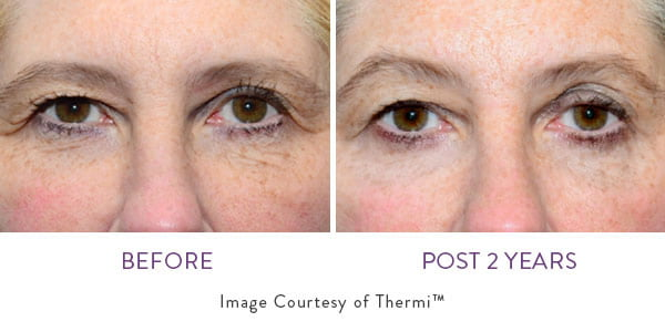 Before and after of ThermiSmooth Face