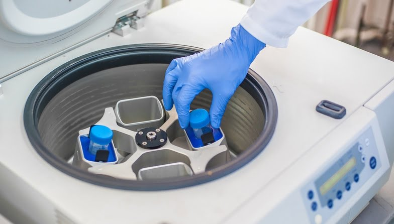 Extracting PRP from the blood in a centrifuge machine