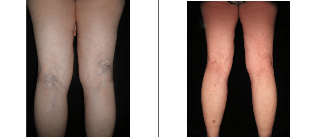 Patient Before and After Sclerotherapy at The Lumen Center