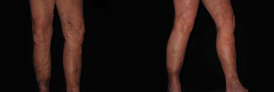Vein Removal Laser Therapy Procedure Philadelphia