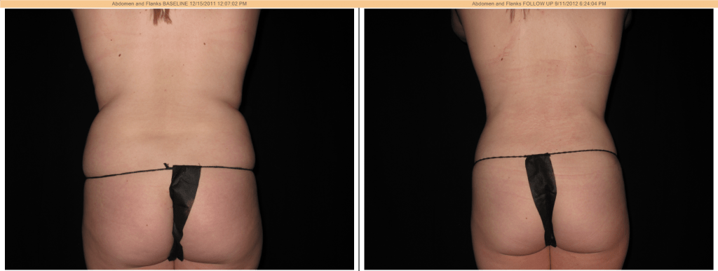 SmartLipo Before & After - Flanks (love handles)