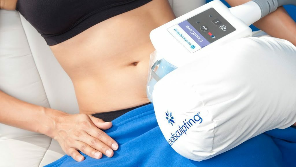The CoolSculpting treatment freezes away fat cells without surgery.