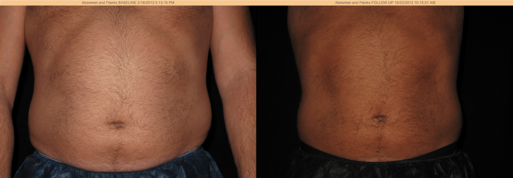 CoolSculpting Before & After - Abdomen and Flanks