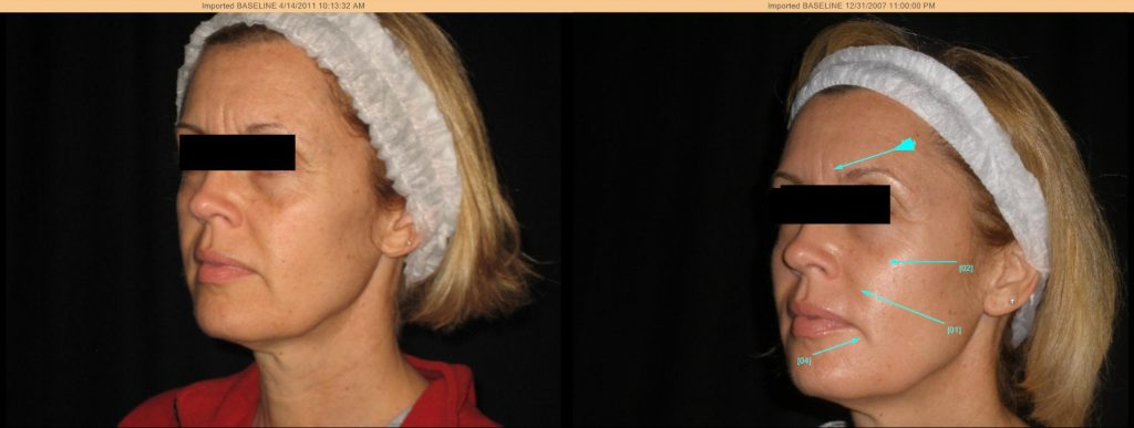 Before and after the Lumen Lift, a nonsurgical, natural facelift