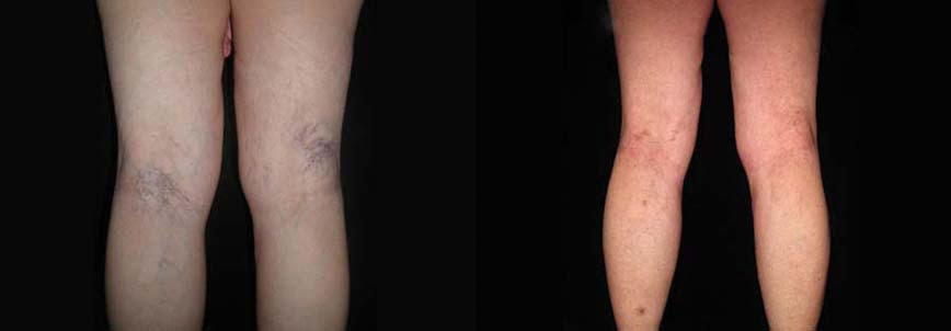 Vein Removal Advantages