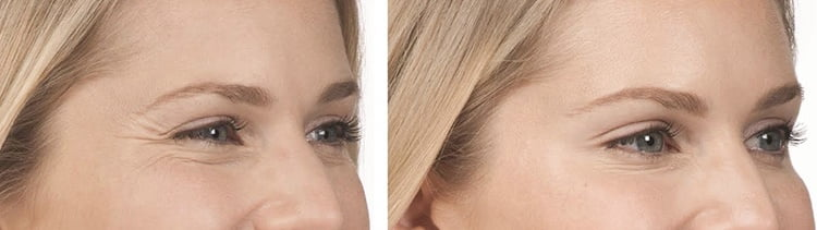 Botox treatment before and after pictures