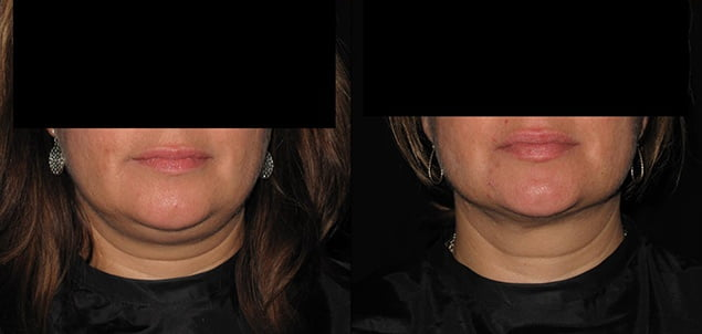 Facial Skin Tightening Procedure Philadelphia