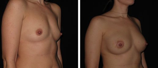 Breast Augmentation Doctor in Bryn Mawr, PA