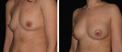 Breast Augmentation Fillers