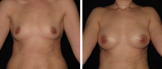 Breast Augmentation Philadelphia
