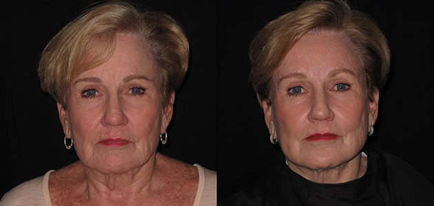 Natural Facelift - Lumen Tight