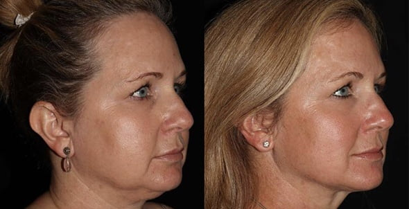 Facial Skin Tightening Benefits
