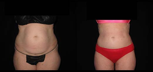 Liposuction Deals Bryn Mawr, PA