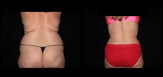 smart lipo philadelphia pa