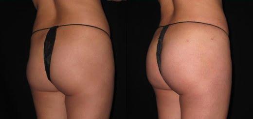 brazilian butt lift bryn mawr