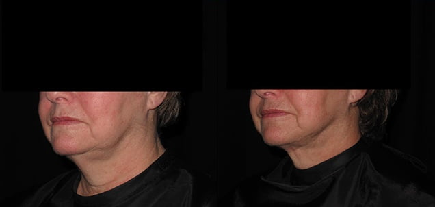 Facial Skin Tightening - Lumen Tight