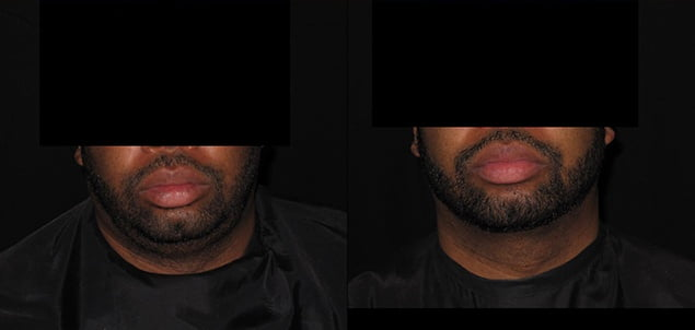 Facial Skin Tightening before and after photos