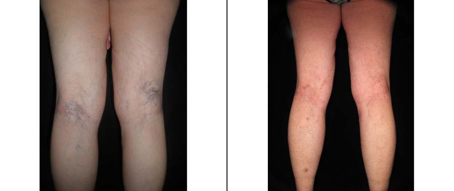 Sclerotherapy Before & After