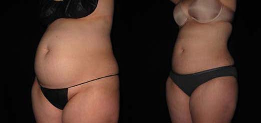 Liposuction before and after pictures Philadelphia