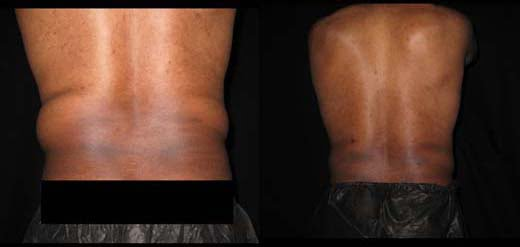 Smart Lipo for men Bryn Mawr, PA
