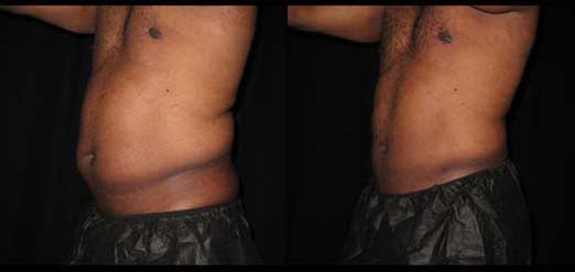 Liposuction for men Philadelphia