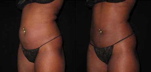 Liposuction Aftercare