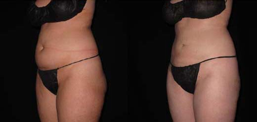 Laser Liposuction Near Me