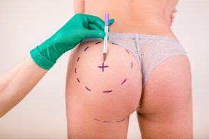The Brazilian Butt Lift is a is a minimally-invasive procedure
