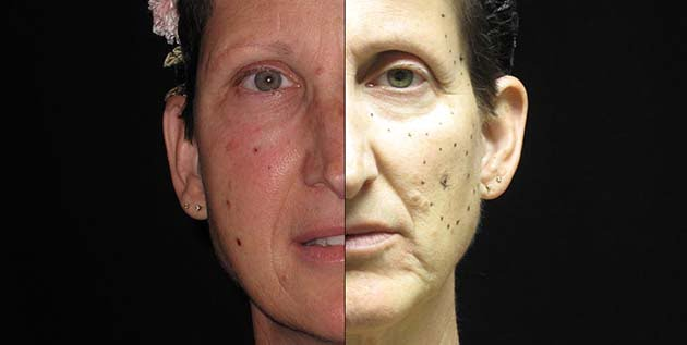 Natural Facelift before and after pictures