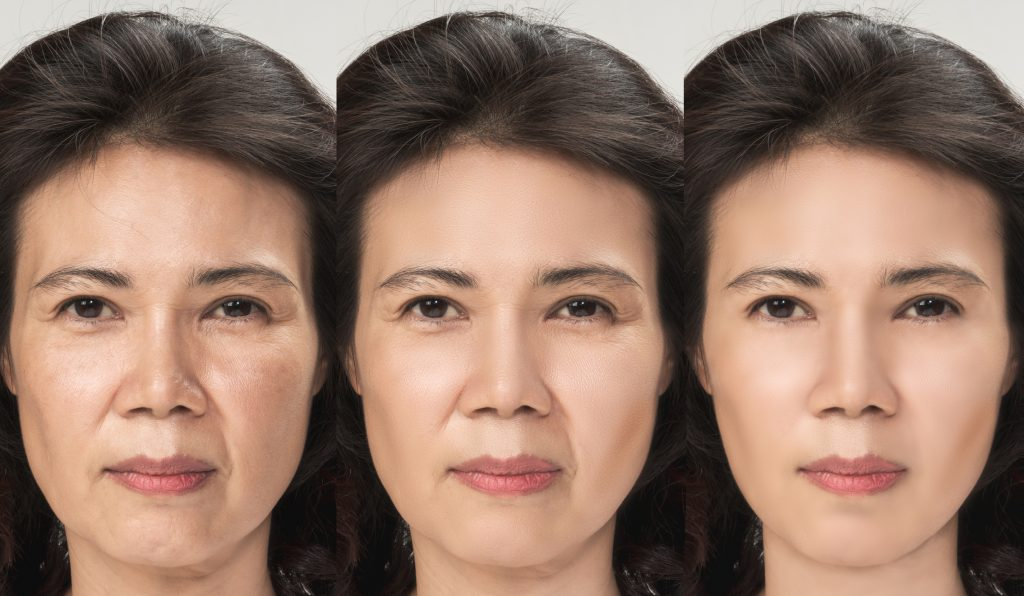 A liquid facelift can reverse the effects of aging