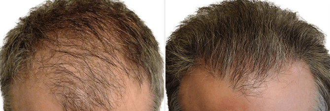 PRP For Hair Loss Treatment Near Me