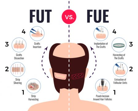 Follicular Unit Extraction Hair Transplant vs. Follicular Unit Transplantation