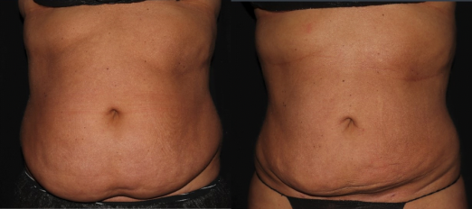 Smart Lipo before and after photos