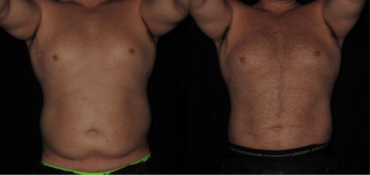Liposuction for men Philadelphia