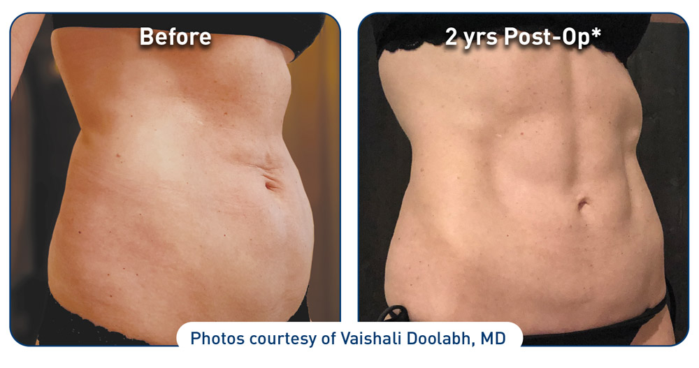 renuvion-before-after-abdominal-case-1-photos_right-side-72dpi