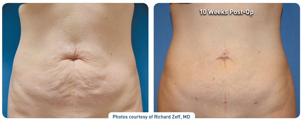 renuvion_before-after_abdominal-case4_photos-front_72dpi