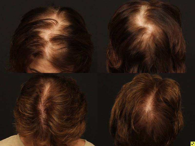 female hair transplantation