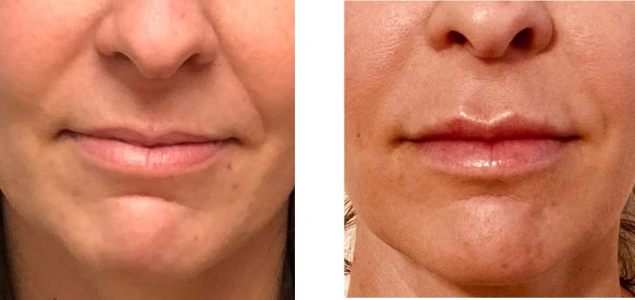 Before & After filler for nasolabial folds and lips